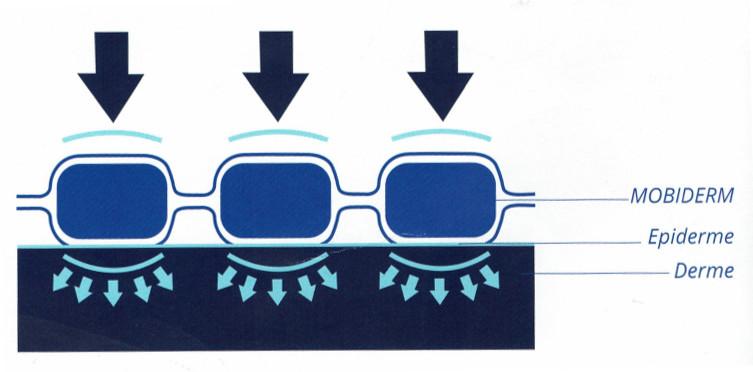 Principe du dispositif Mobiderm